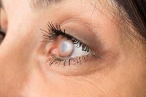 Cataract Surgery Huntington Beach CA